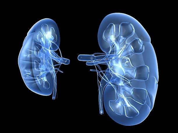 Prevenção de cálculos renais
